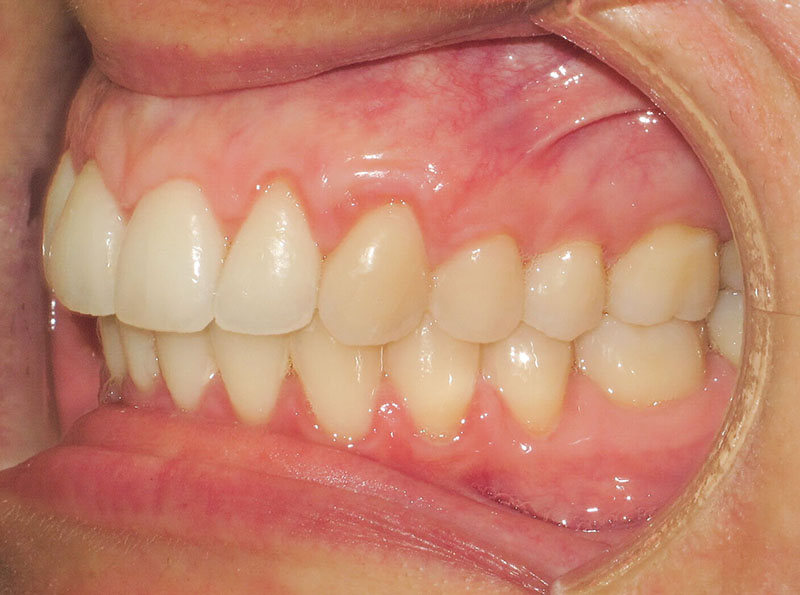 Maria C - Buccal AFTER