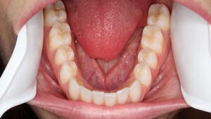 Lower Teeth (occlusal) Example